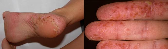 népi gyógymódok pikkelysömörhöz a kezeken és a lábakon krém a lábán lévő vörös foltokért