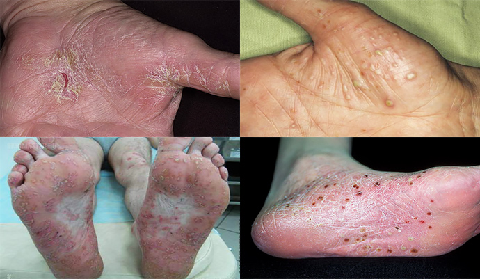 phosphogliv kezelése pikkelysömörhöz