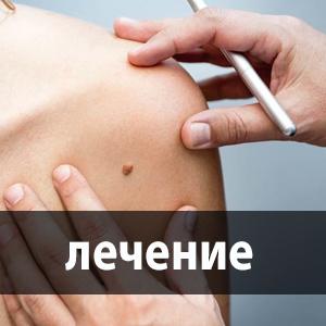 lábujjhártya-kezelés)